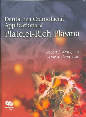 Dental and Craniofacial Applications of Platelet-Rich Plasma