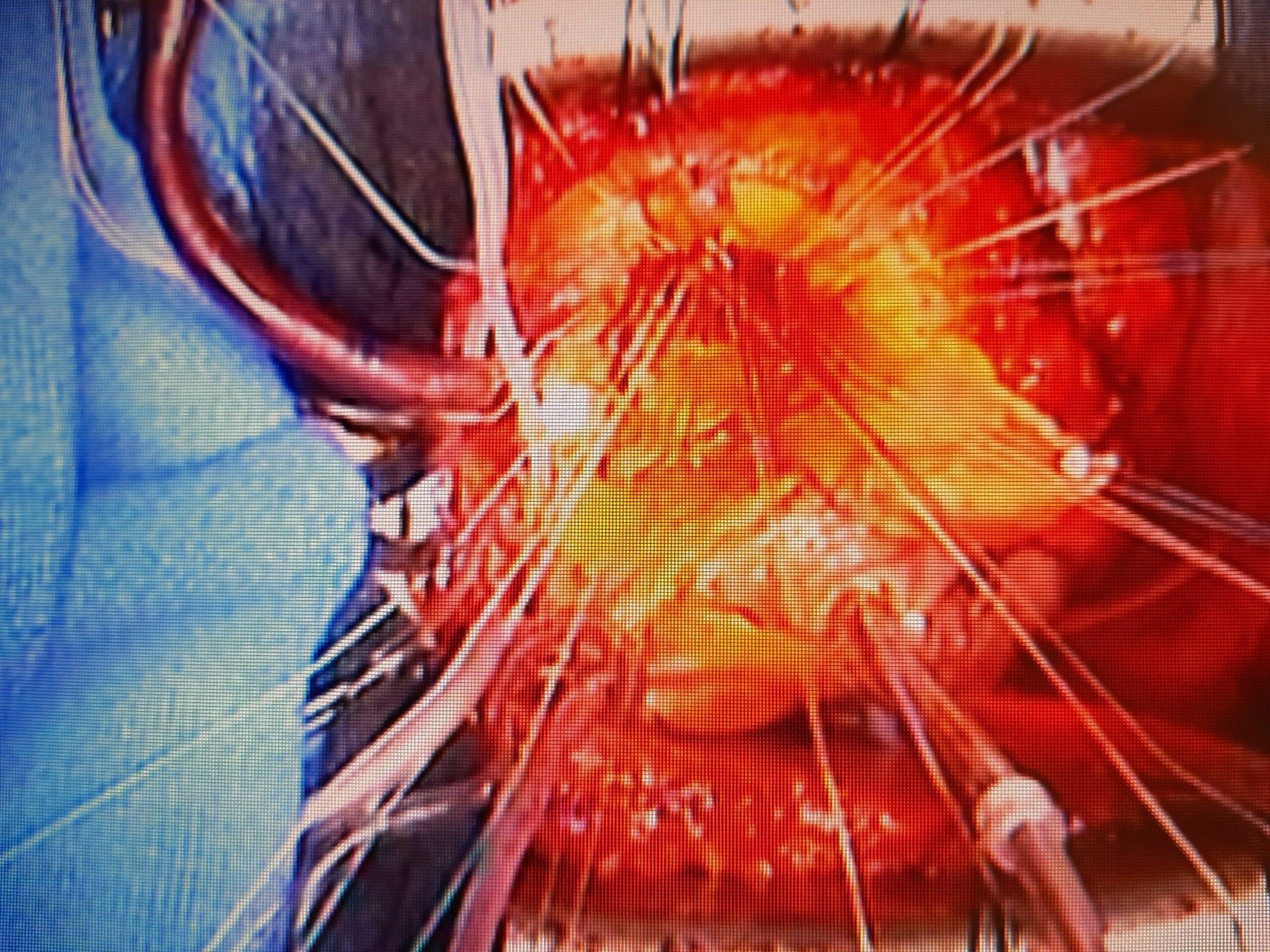 surgery up close