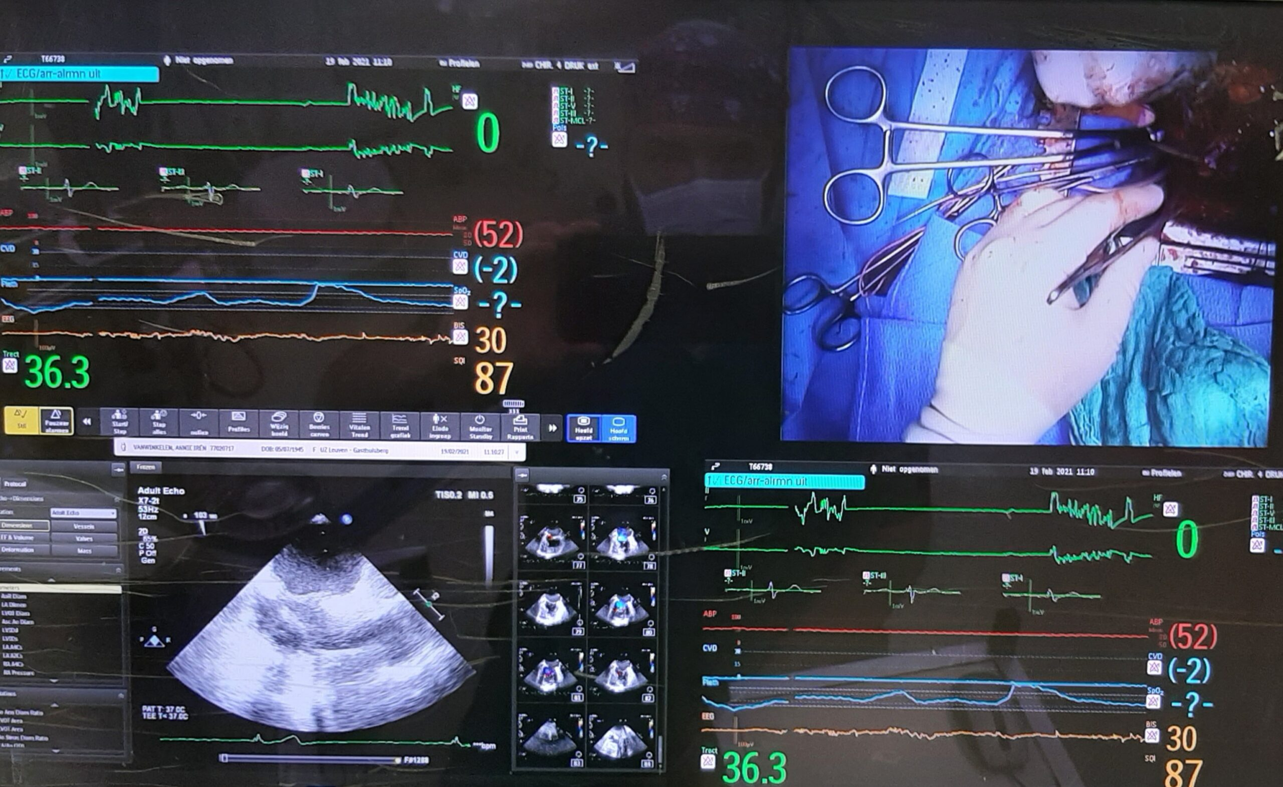perfusion screen