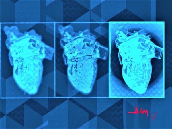 Artwork - X-Ray Hearts